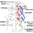 椎間関節性腰痛と筋々膜性腰痛の針灸 再整理 Ver.1.2