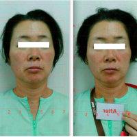美容鍼 整顔 のモニターさん-6-