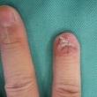 手袋ならぬ指袋を作りました