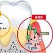 体調不良の原因は歯周炎?