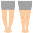 見かけ上のO脚と本物のO脚     変形性膝関節症