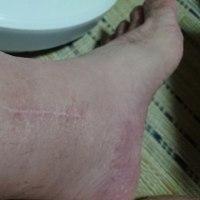 脚の血色が悪い