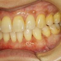 矯正治療後には歯茎の再生治療がお勧めです。積極的な予防治療のご紹介です。