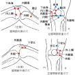立位で膝関節症の針治療をすることの意義 Ver. 1.5