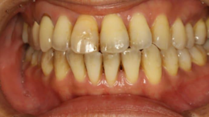 歯茎が下がってしまったときはまず歯周病の細菌検査で歯周病菌を確認しましょう