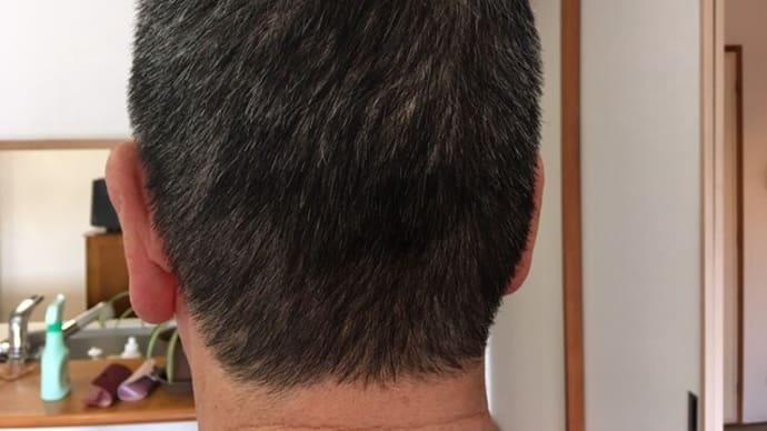 馬鹿は、白髪にも禿にもならない? 芝信用金庫ブログ急上昇。