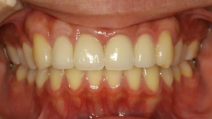 テトラサイクリンで変色した歯のオールセラミック治療が改善されました。