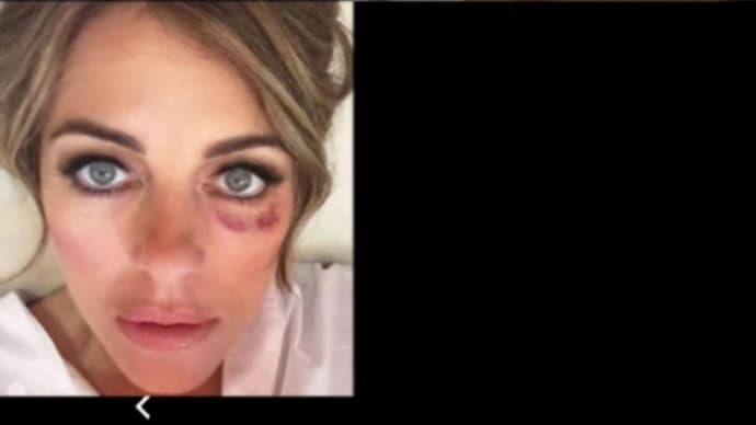 目の周り アドレノクロム 【動画】アドレノクロムの効果とは?副作用は目のあざ?【画像】