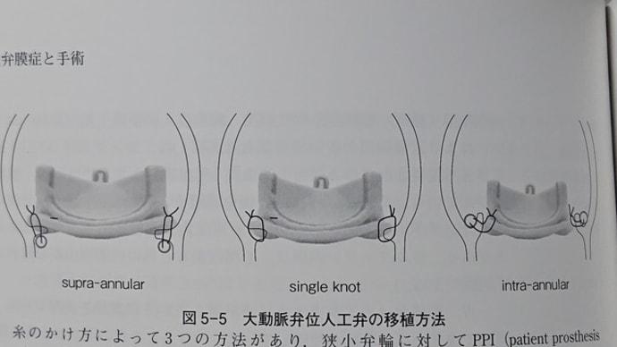 人工弁の縫着方法Supra? Intra?