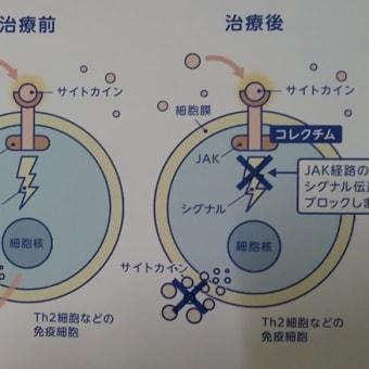 アトピー性皮膚炎の新薬ーコレクチム軟膏