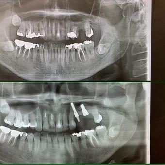 抜歯即時荷重インプラントの要諦は植立トルク値