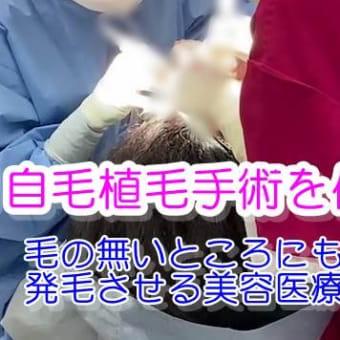 【薄毛・ヘアライン悩みを解決する】自毛植毛の手術を受けました!(動画で観てねー)