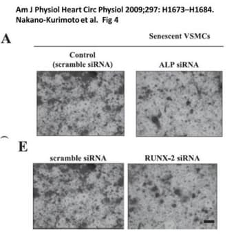 画像類似の論文#13 (Am J Physiol Heart Circ Physiol. 2009;297:H1673-84.)