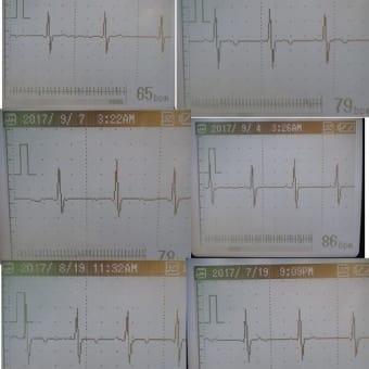 心臓ショックを狙った中性子線攻撃のために交通事故も演出する警察