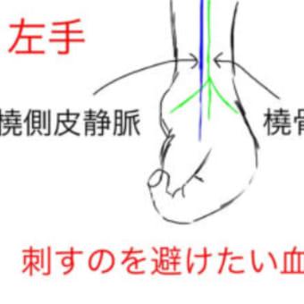 橈側皮静脈穿刺