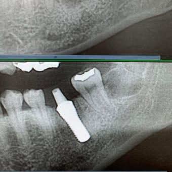 お約束通りに腫れない痛くない親知らず抜歯と即時荷重インプラント手術翌日