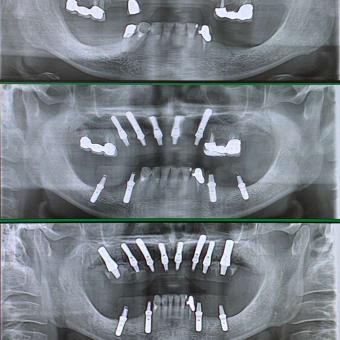 即時荷重インプラント成功の法則は、お口の中の機能回復にあります。