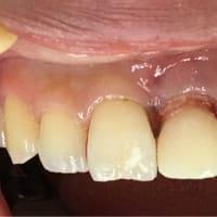 抜歯即時植立インプラント、即時修復から仕上げセラミックまで