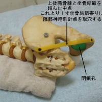 泌尿器科症状に対する陰部神経刺針の限界 ver.1.1