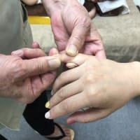 小指の捻挫の治し方