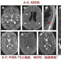 新型コロナウイルス感染症COVID-19:最新エビデンスの紹介(7月24日)