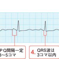 弧状列島,死因2位 心筋梗塞発症率リスク上昇要因は気温が低い、気圧が低い、風が強い、日照時間が短いなどが関係、 気圧の感知は耳の奥の内耳