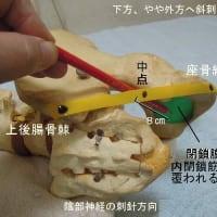 便秘に対する針灸治療 傍内臓刺について