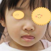 顔面のいちご状血管腫。レーザーと内服の併用。