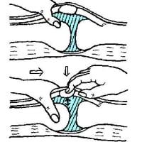 膝痛以外の膝症状への対処