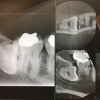 下顎の骨に横に埋まってる親知らずの抜歯を何事もないように抜く。