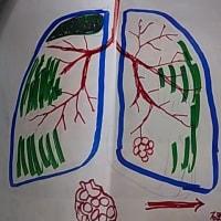 間質性肺炎と