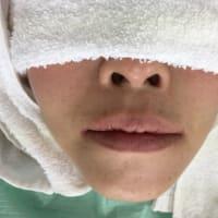 腫らさない、痛がらせないインプラント、直ぐに歯があるのが嬉しい