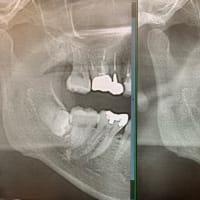 私親知らずの抜歯腫らせないので痛くしません。