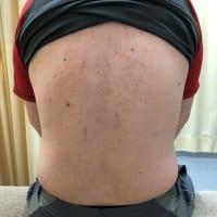 肝臓が原因の背中から側腹部までの痛み