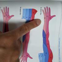 アームカールで手がしびれる~正中神経の絞扼神経障害~前編