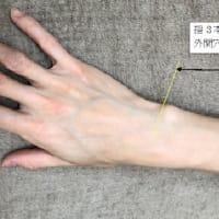 七星鍼法は論理的(2):たとえば肩こり