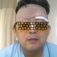 年末からの波乱万丈38(頭蓋咽頭腫と硬膜動静脈瘻、硬膜動静脈瘻のガンマナイフ)
