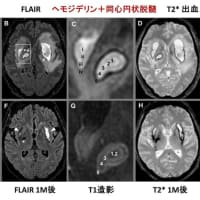 新型コロナウイルス感染症COVID-19:最新エビデンスの紹介(10月24日)