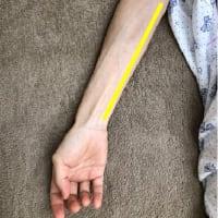 レーザー治療器を取り入れた理由 (8) 一穴鍼法とレーザー治療器
