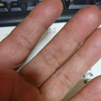 左手の小指、小指、薬指の関節が固まりだした。