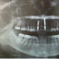 定期検診で審美インプラントチェック、歯茎綺麗でホッとしました。