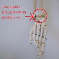変形性足関節症の症状と経緯