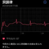 Apple Watchで心電図
