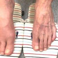 足が腫れた:巨鍼療法も素晴らしい \(^o^)/