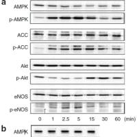論文捏造 case 2 (AJH,Cardiovasc Res,FEBS Letters誌)(AMPK,ACC画像の流用)