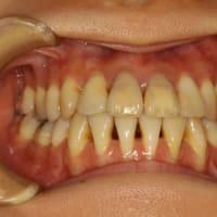 細菌検査で歯周病の状態を詳しく確認することが可能になります。 ~なかなか治らない歯周病の方へ~