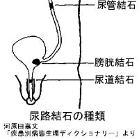 尿路結石の疝痛は、側臥位での外志室深刺が効果的なようだ