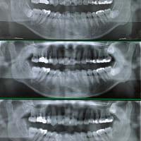 腫らさないから痛くない下顎親知らずの抜歯