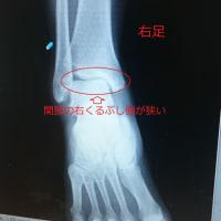 変形性足関節症ー右足リハビリの日々