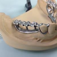長持ちする入れ歯が歯と咬合を守る